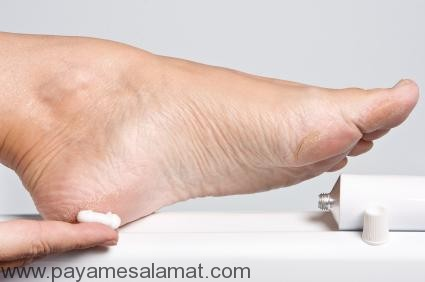 درمان خشکی و ترک پا در خانه