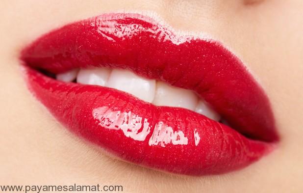 تزریق ژل برای داشتن لب هایی جذاب و برجسته