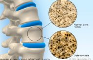آیا خوردن لبنیات از پوکی استخوان جلوگیری می کند؟