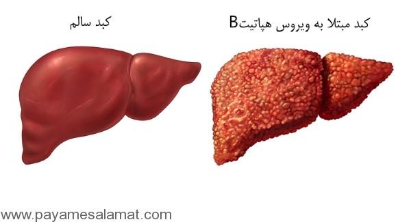 علائم و روش های انتقال بیماری هپاتیت B