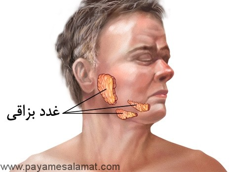 اریون ( گوشک یا خوکلک ) علائم و درمان ها