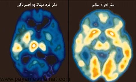 افسردگی بالینی و علائم عاطفی و فیزیکی آن