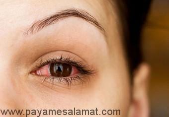 عفونت های شایع که منجر به قرمزی چشم می شوند
