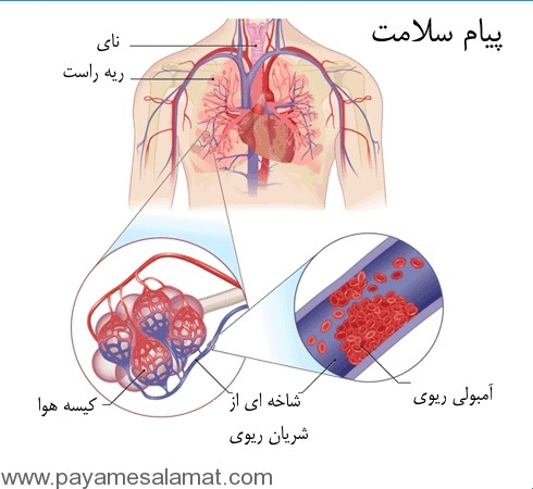 آمبولی ریه را بهتر بشناسید
