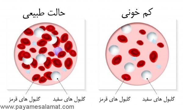 آیا می دانید کم خونی چیست و چه علائمی دارد؟