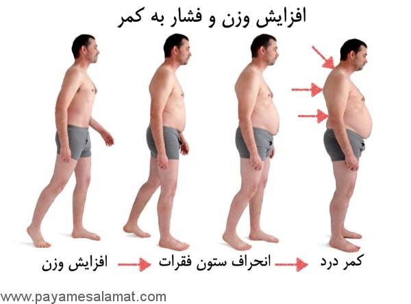 رابطه بین کمر درد با چاقی