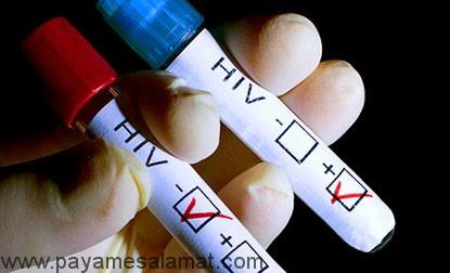 تفاوت بین HIV مثبت و ایدز چیست؟