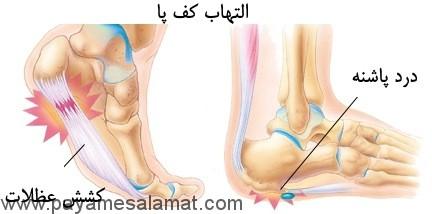 علل ایجاد درد پاشنه پا