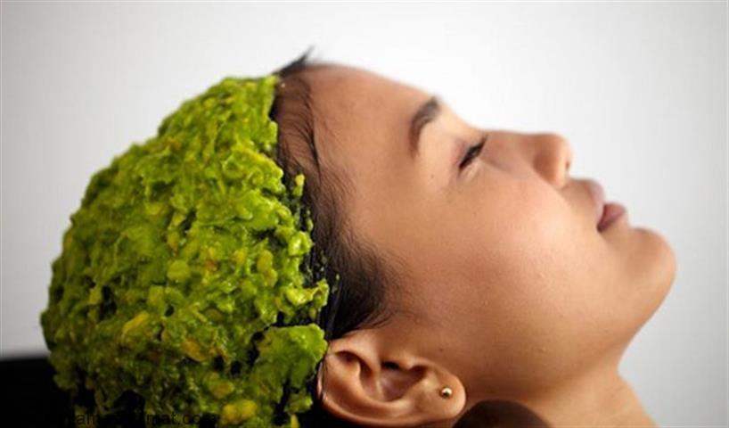 علل، انواع و درمان های گیاهی ریزش مو