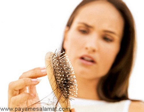 درمان خوراکی ریزش موها