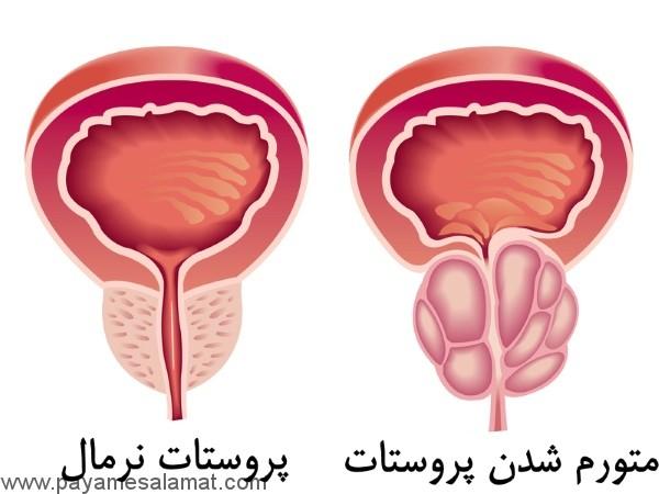 ورم پروستات چیست؟
