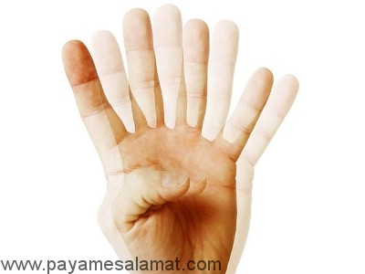 انواع اختلالات بینایی