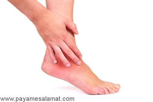چه چیزی باعث درد مچ پا و التهاب تاندون مچ پا می شود