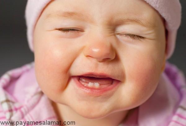جلوگیری از پوسیدگی دندان در نوزادان شیرخوار