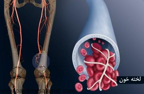 با بیماری ترومبوز سیاهرگی عمقی بیشتر آشنا شوید