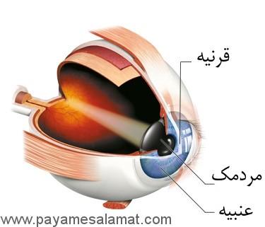 همه چیز درباره پیوند قرنیه چشم