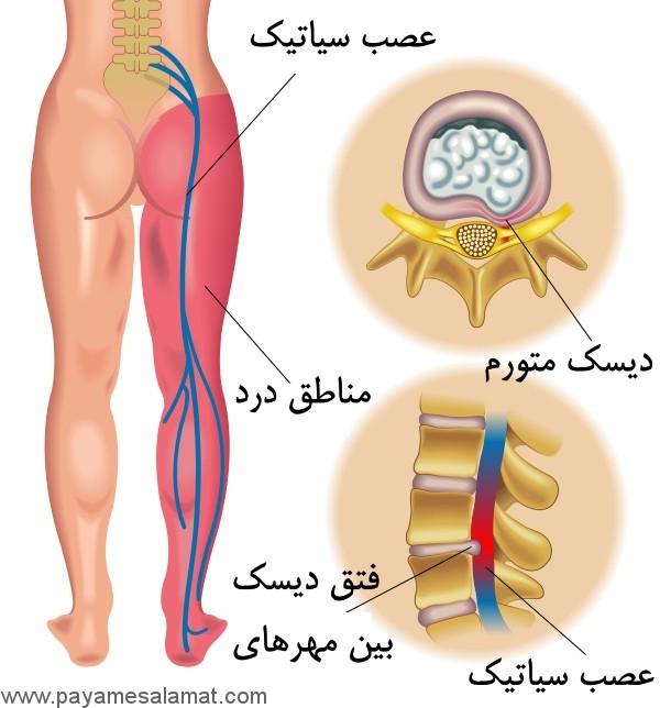 چند نسخه گیاهی برای درمان سیاتیک