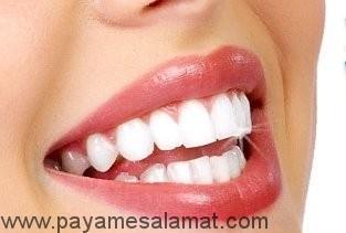 راه های ساده و خانگی برای سفید کردن دندان ها