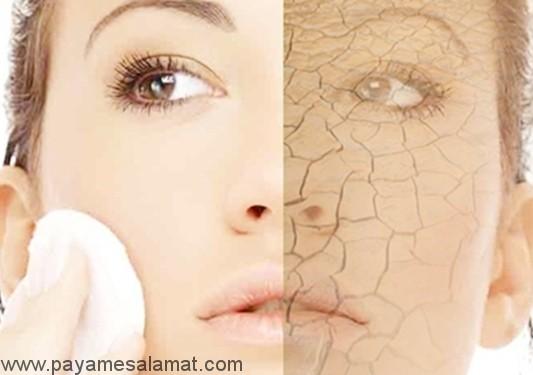 تغییر در شیوه زندگی برای درمان خشکی پوست
