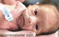 چرا تولد زودرس نوزاد اتفاق می افتد؟