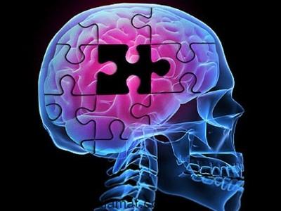 علل بیماری آلزایمر چیست؟