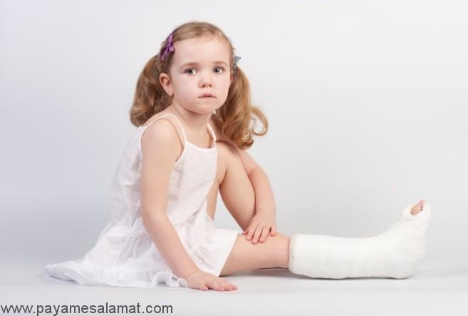 اقدامات لازم در شکستگی استخوان کودکان