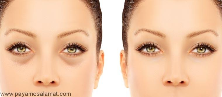 پیشگیری و درمان سیاهی دور چشم