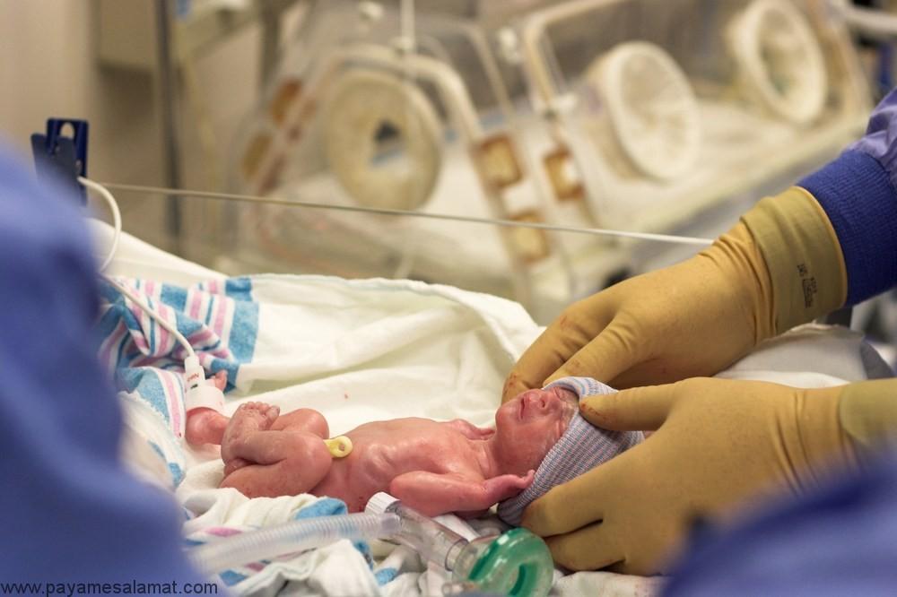 درباره رتینوپاتی نوزادان نارس (ROP)