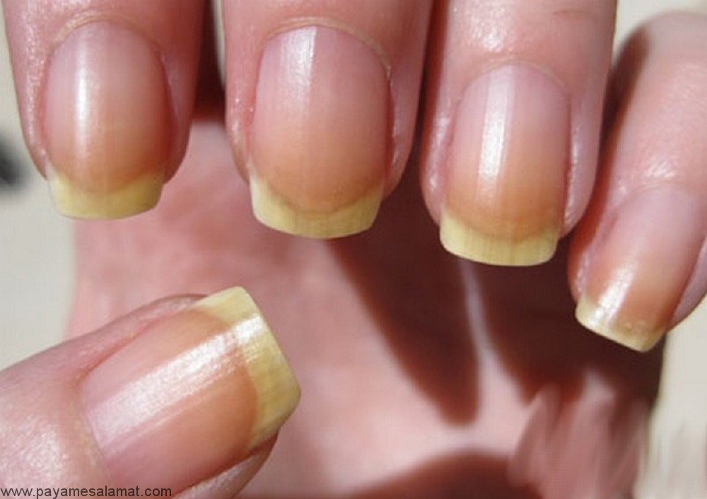 علل زردی ناخن دست و پا و درمان های طبیعی آن