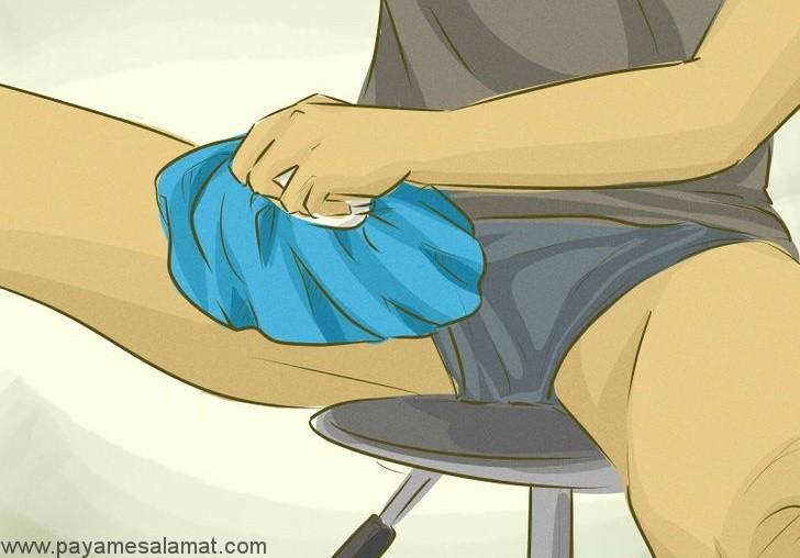 بهترین درمان های طبیعی برای کچلی کشاله ران