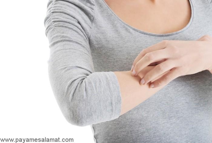 خارش بدن از علل تا درمان های طبیعی