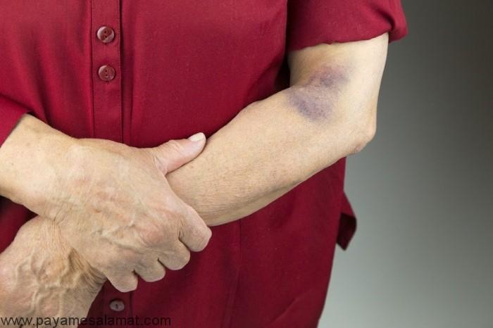 راه های درمان کبودی به طور طبیعی