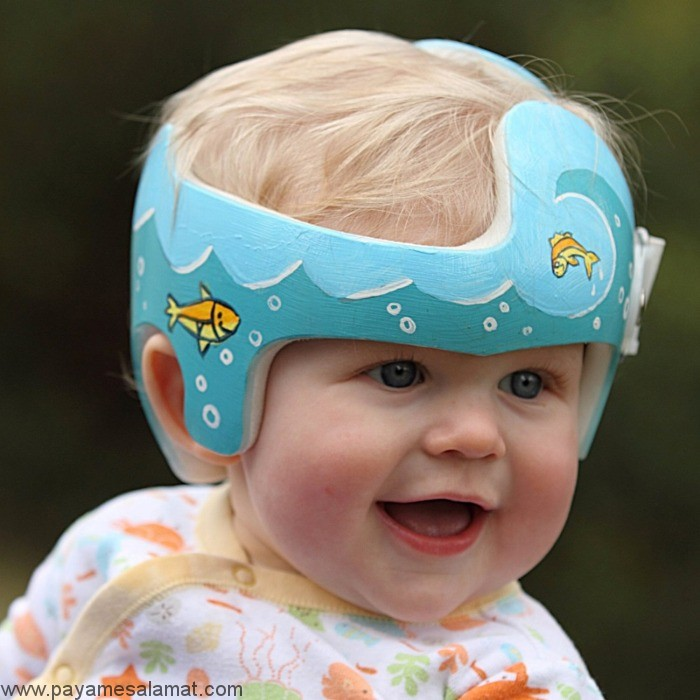 صاف شدن سر نوزاد (پلاژیوسفالی موضعی)