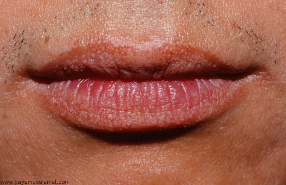 علائم و علل ایجاد دانههای فوردایس (Fordyce) و درمان های موثر آن