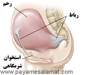 درد رباط گرد در دوران بارداری