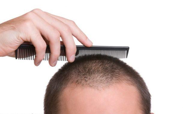 بهترین مکمل ها و ویتامین های رشد مو برای مبارزه با ریزش مو