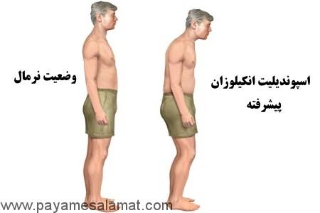 اسپوندیلیت آنکیلوزان چیست؟