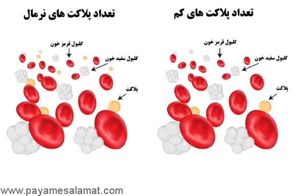 پایین بودن پلاکت خون در دوران بارداری