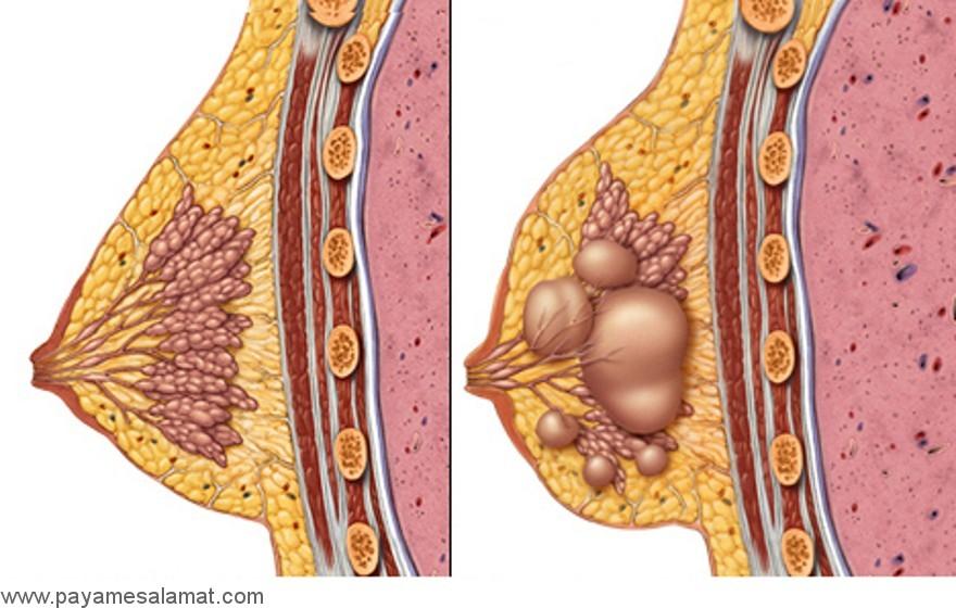 توده های پستان چه هستند و علائم هشدار دهنده آن ها کدامند؟