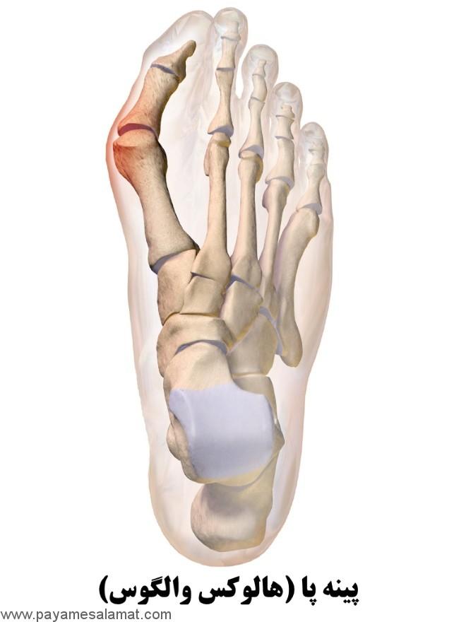 چگونه از درد پینه پا بدون جراحی خلاص شویم؟