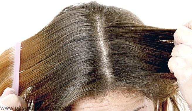 شوره و خشکی پوست سر تفاوتها و بهترین درمان ها