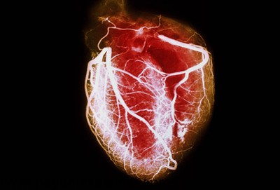 ایست قلبی چیست، چه علائمی دارد و اقدامات لازم برای احیا کدامند؟