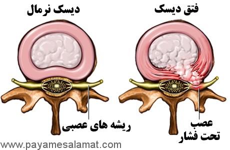 فتق دیسک بین مهرها چیست؟ چه علائمی دارد؟ و چگونه درمان می شود؟