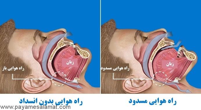 علائم آپنه بازدارنده خواب و درمان های موثر