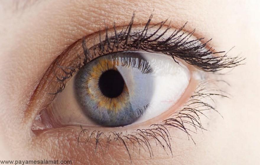 مواد غذایی مفید برای چشم و بیماری های مرتبط به آن