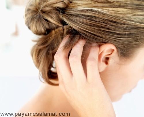 بهترین درمان های خانگی برای خارش و خشکی پوست سر