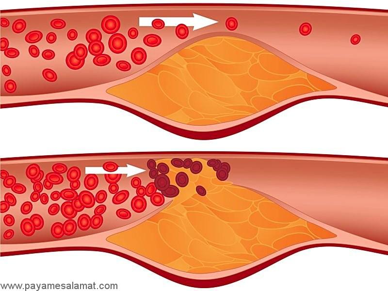 پلاک های آسیب پذیر و تاثیر آن ها بر روی حمله قلبی بر اساس آخرین مطالعات