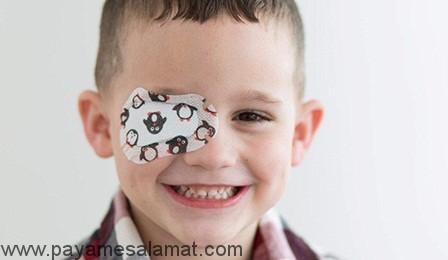 تنبلی چشم (آمبلیوپی) از دلایل ایجاد تا درمان های موثر آن