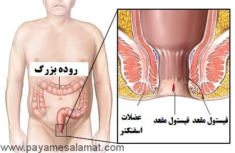 فیستول مقعد چیست روش های جراحی آن کدامند؟