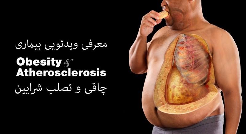 ویدئوی معرفی بیماری تصلب شرایین